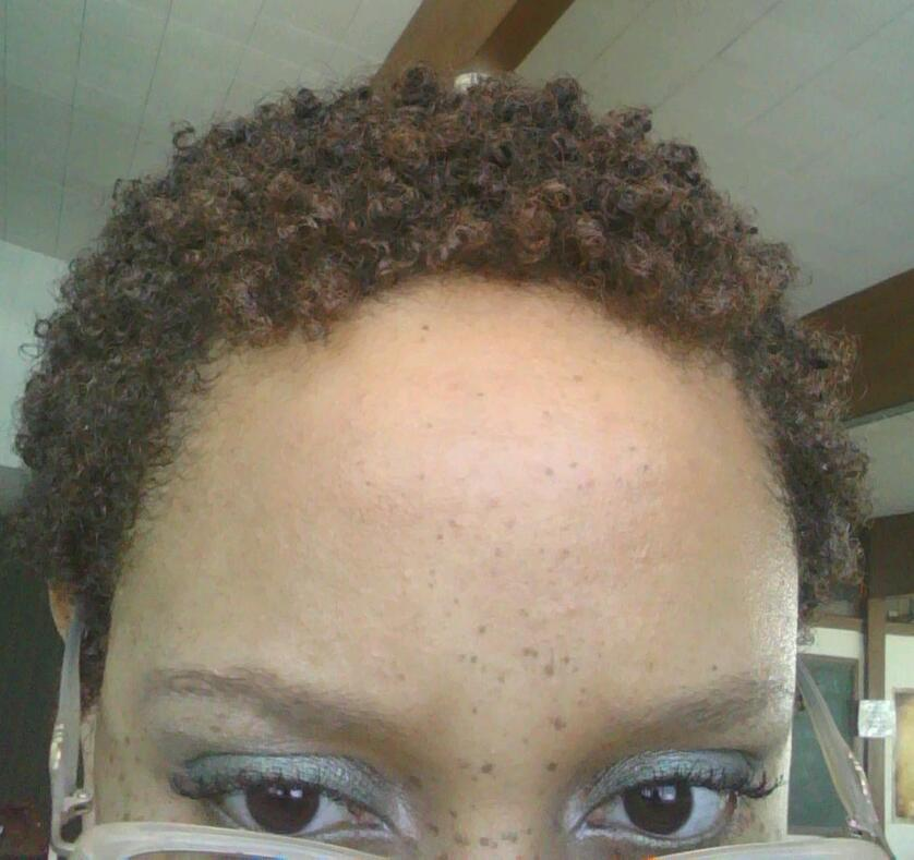 Is Your TWA a Pain in the Neck?