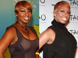 Black Women and Plastic Surgery