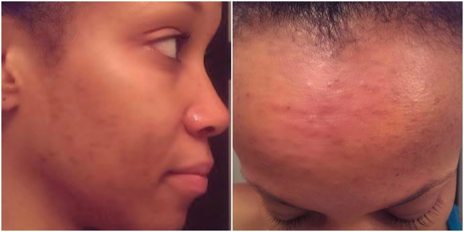 Feel with acne to how pretty How to
