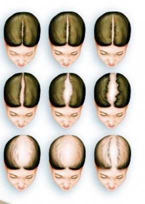 Abnormal Hair Loss Causes and Solutions