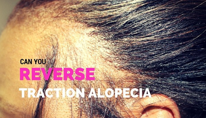 Can Traction Alopecia Be Reversed? #TeamEdges