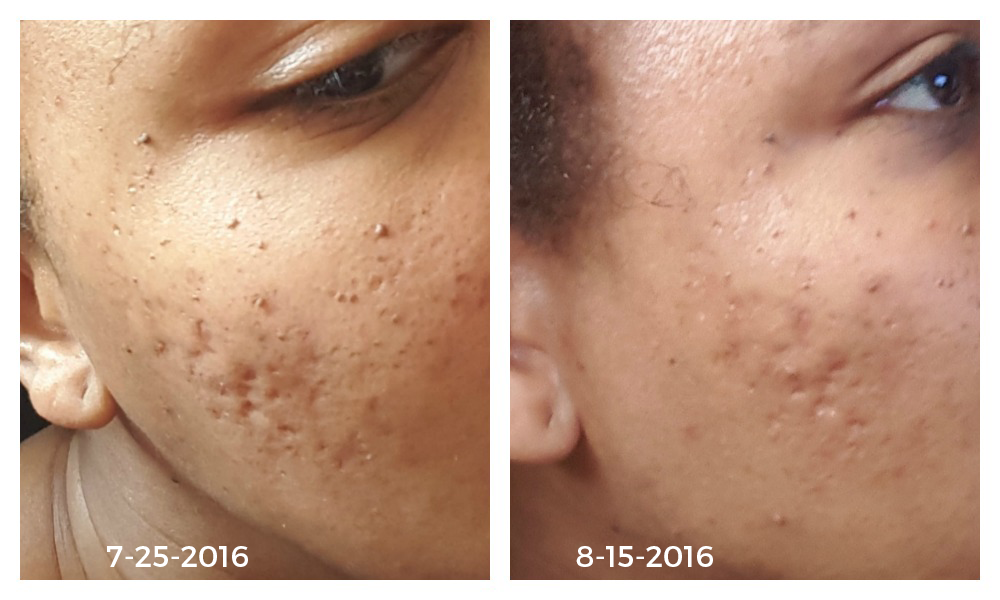 How I Got Rid of Hyperpigmentation and Scars Naturally