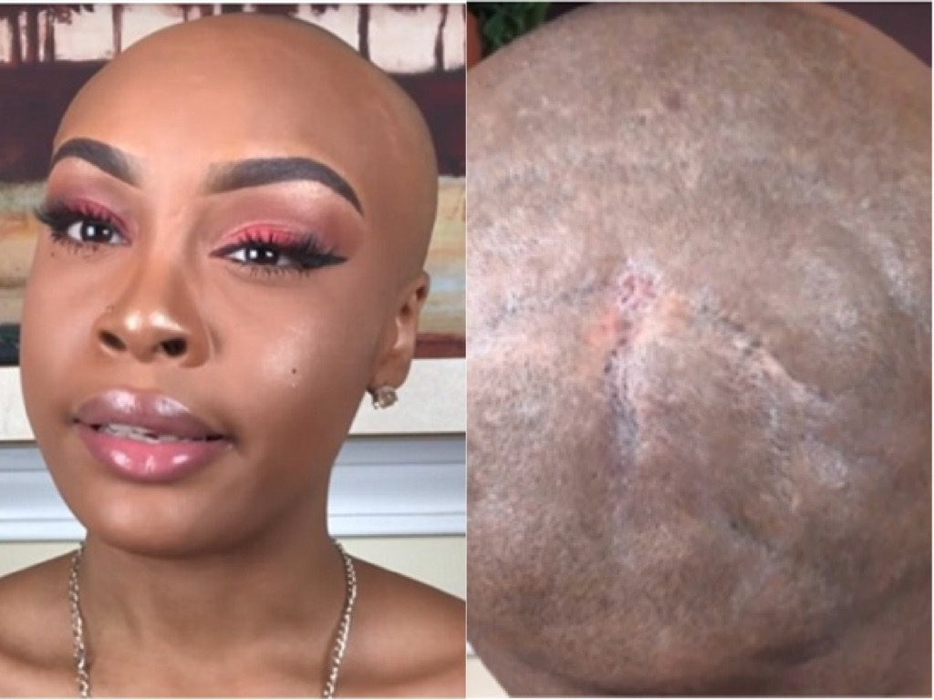 Vlogger Shares Graphic Details of How Weave Severely Damaged Her Hair & Scalp
