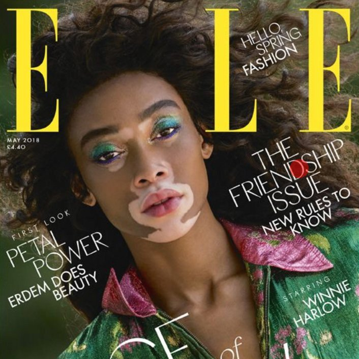 The Face of Now: Winnie Harlow Covers Elle UK!