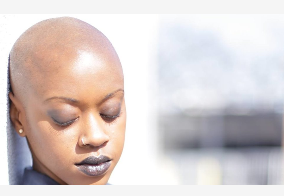 Alopecia: How I Learned To Find the Beauty In My Baldness