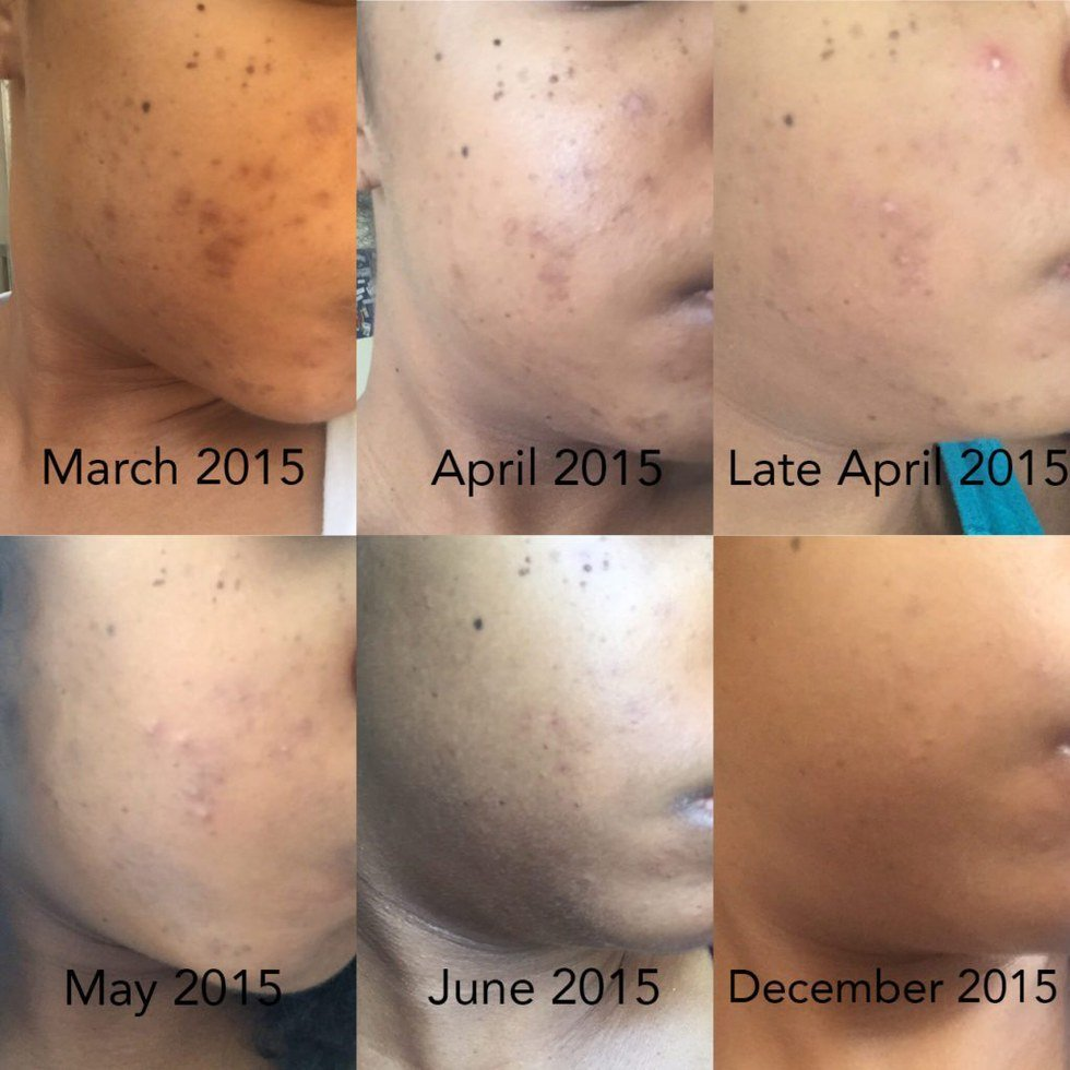 I Cleared Up My Hyperpigmentation Thanks To This 5-Step Method